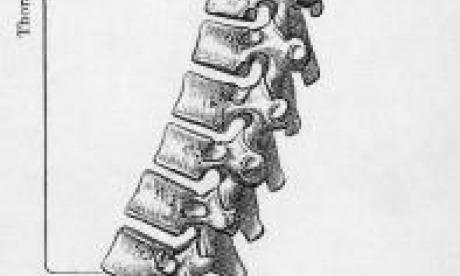 The Big Debate on spines: 'tough on spines, tough on the causes of spines'