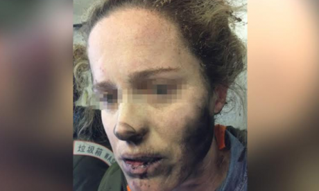 Woman burned after battery-operated headphones explode on flight to Melbourne
