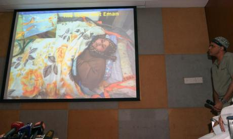 Indian doctors treating world's heaviest woman resign in protest over lying allegations