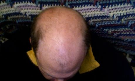 Scientists claim to have discovered the cause of grey hair and baldness