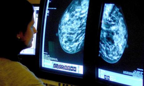 Early risers are less likely to develop breast cancer, study claims