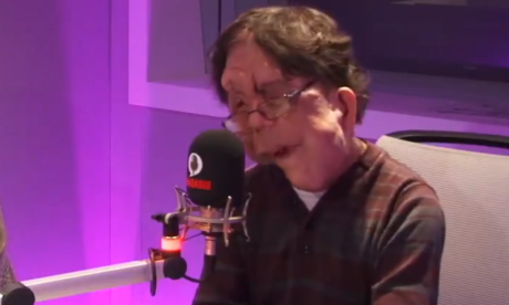 'There is a thing of being too disabled' as an actor, says producer Adam Pearson